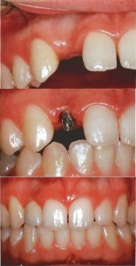 Implante Dental Incisivo Lateral Derecho